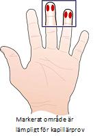 Bild på hand som visar vilket område som är lämpligt för kapillärprov
